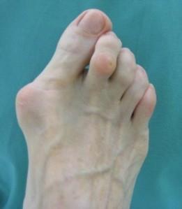 Hallux abductus Valgus o Juanete, que puede derivarse del uso de un mal calzado o un pie plano valgo